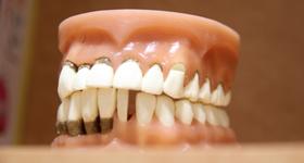 30代以上の歯周病対策